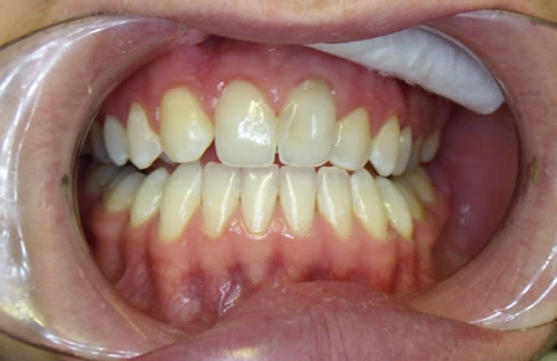 White Fillings & Tooth Whitening