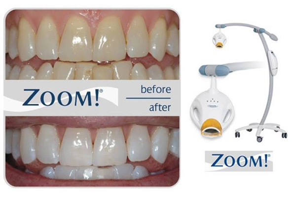 New Zoom Whitening System!