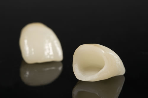 Dental Crowns from Camlough Dental