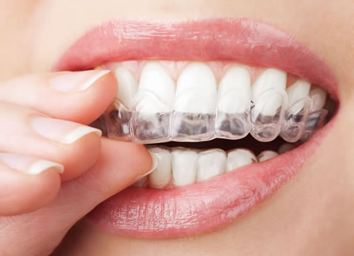 Tooth Whitening at Camlough Dental