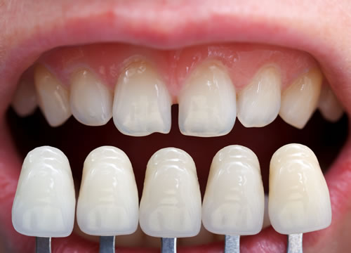 Dental veneers at Camlough Dental